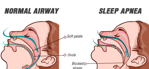 Normal Airway vs Sleep Apnea